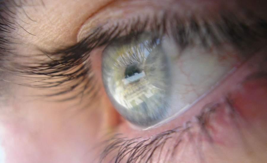 El láser que cambia el color de los ojos