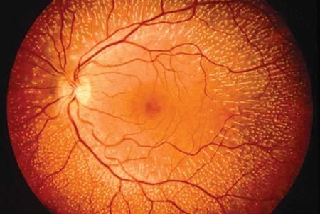 Tratamiento de la ceguera con células madre