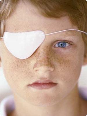 Causas y síntomas de la ambliopía (ojo vago)