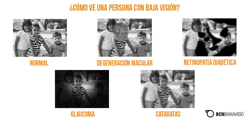 ¿Cómo ve una persona con baja visión?