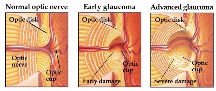 Efectos del glaucoma