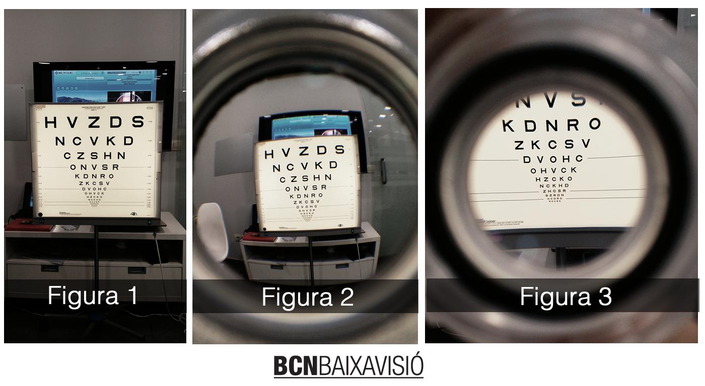 Aumento para pacientes con baja visión