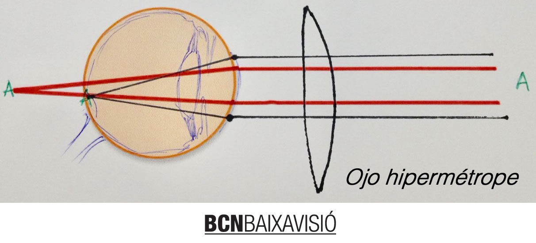 ojo_hipermetrope